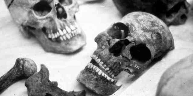 Scientist Reveals Goriest and Most Extreme Ways To Die