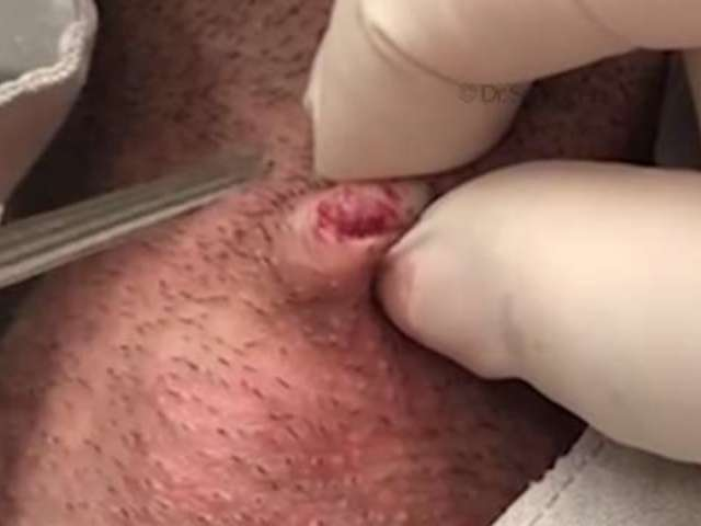 Dr. Pimple Popper's 'Adam's Apple' Video Is a Must-See