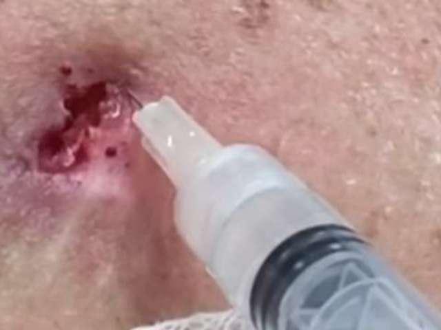 Dr. Pimple Popper's Back Blackhead Extraction Has Fans Mesmerized