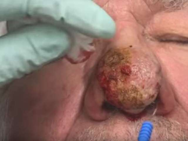 Dr. Pimple Popper's Transformation of Man With Rhinophyma Is a Must-See
