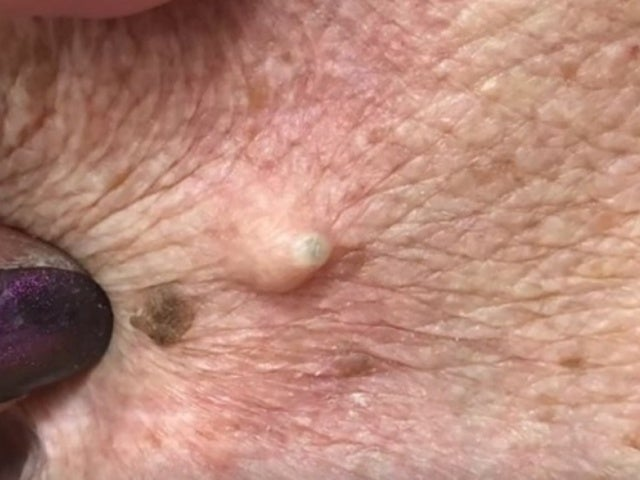 Dr. Pimple Popper Presents 'Cyst Rose' in Latest Video