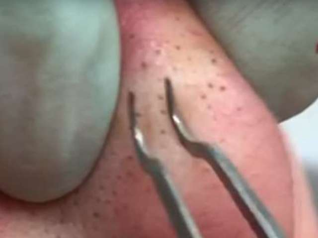 Dr. Pimple Popper Fans 'Drop Everything' to Watch Her Latest Blackhead Video