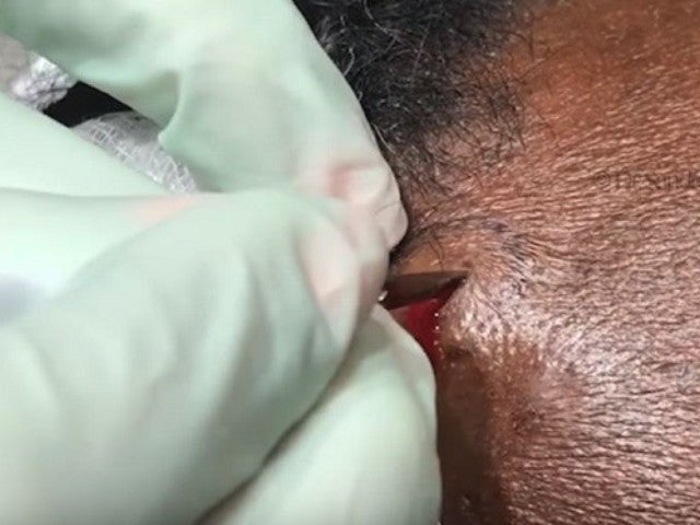 Dr. Pimple Popper Tackles Tough 'Skittles' Breakout