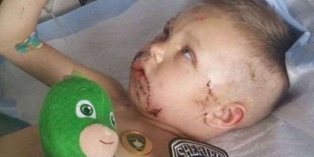 2 Pitbulls Viciously Attack Toddler