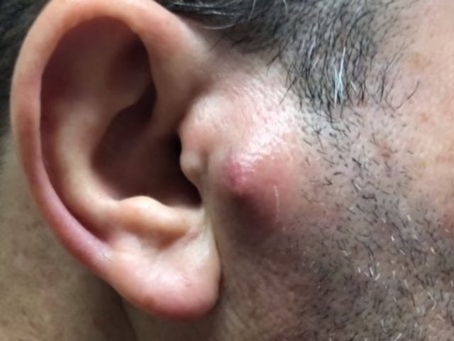 Things Get 'Mooshy' When Dr. Pimple Popper Tackles a Bump on Patient's Head