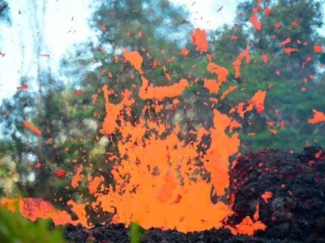 Lava Spatter From Hawaii Volcano Shatters Man's Leg