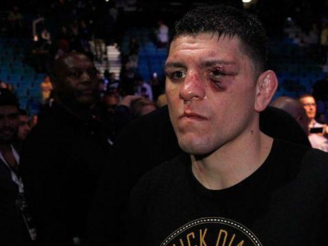 UFC Fighter Nick Diaz Arrested for Domestic Violence