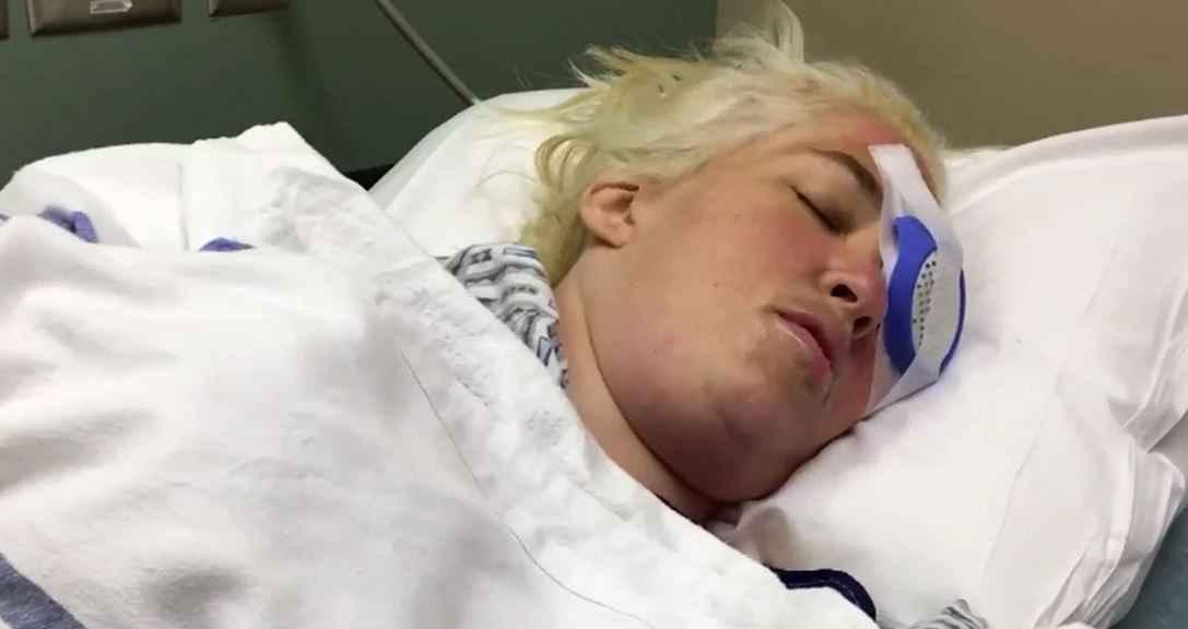 mama-june-eye-surgery