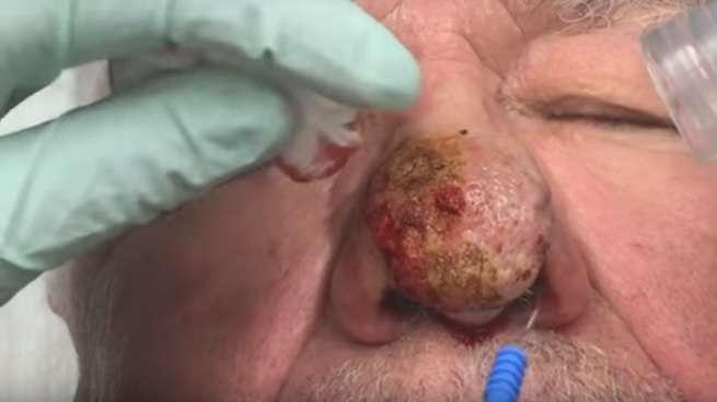 pimple popper nose condition