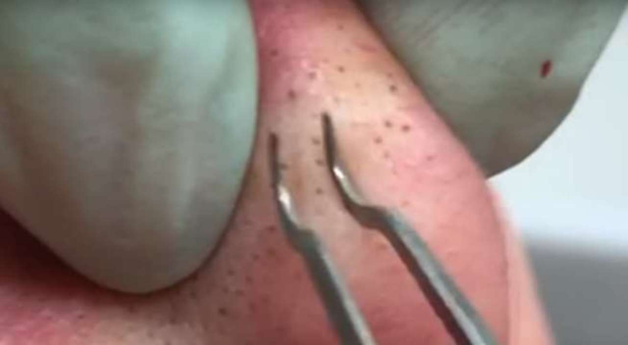 Dr  Pimple Popper Fans 'Drop Everything' to Watch Her Latest