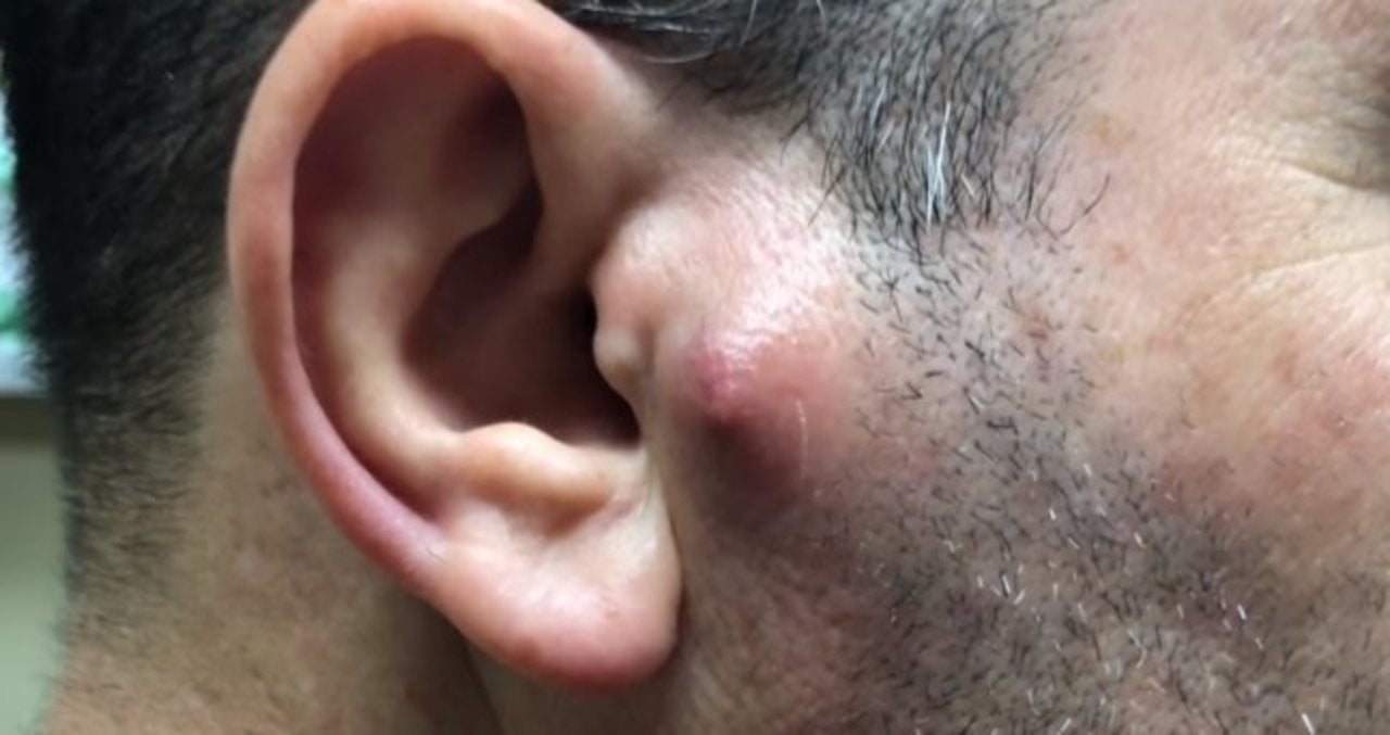 Things Get Mooshy When Dr Pimple Popper Tackles A Bump On