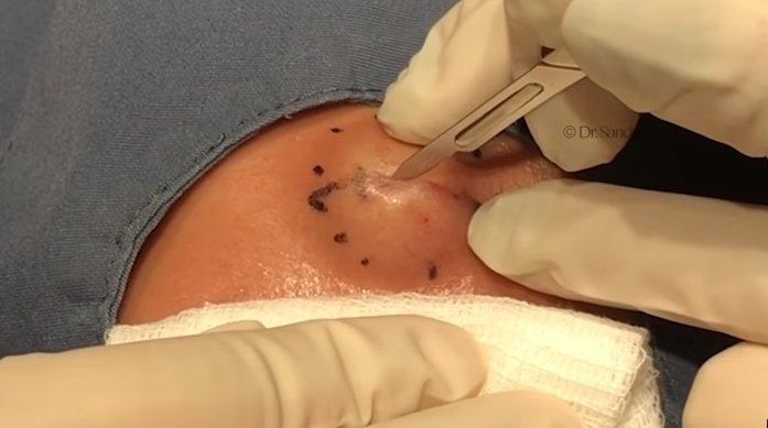 dr-pimple-popper-cyst-spit-youtube