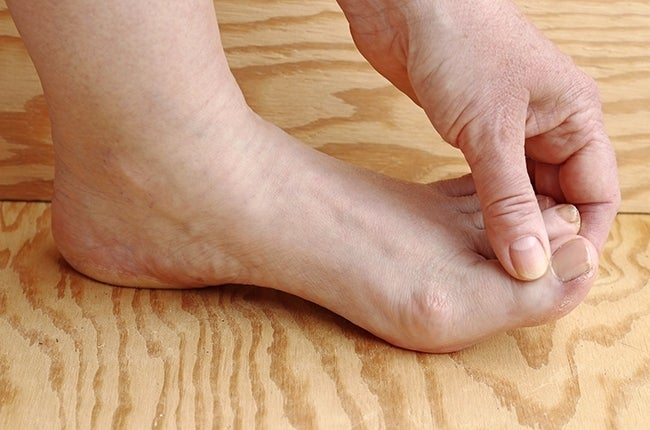 thlete's-foot