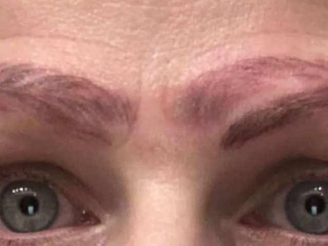 Mom Born With No Eyebrows Ends up With Four Following Botched Microblading Treatment