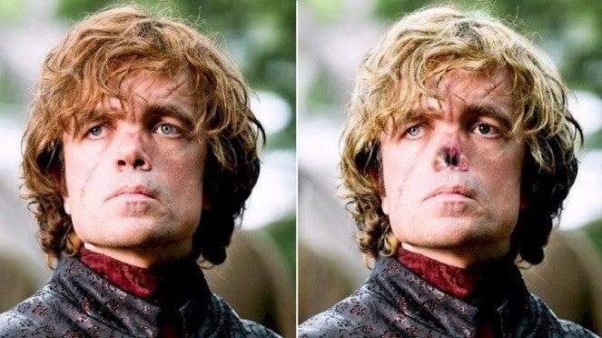 """a-tyrion-books """" title = """"got-tyrion-books"""" height = """"372"""" width = """"663"""" data-item = """"20064338"""" /> <figcaption> (Photo: YouTube / Looper) </figcaption></figure><p> Dans un cas similaire, les fans se plaignent souvent de ce que Peter Dinklage est trop beau pour jouer à Tyrion Lannister et ses cicatrices ne sont pas assez graves. </p> <p> Dans les livres, Tyrion présente un gonflement asymétrique et son corps est non seulement petit, mais légèrement mal formé, ce qui le rend difficile. Surtout, Tyrion a deux yeux de couleurs différentes - l'un vert et l'autre noir, ce qui déconcerte certains de ses ennemis. </p> <p> Lors de la bataille de Blackwater, Tyrion se prend une hache de guerre au visage. Dans le cahier, les cicatrices étaient beaucoup plus voraces, et cicatrisaient en diagonale le long du visage, du front au menton. Tyrion difficile à regarder même aux yeux de beaucoup. </p> <blockquote class="""