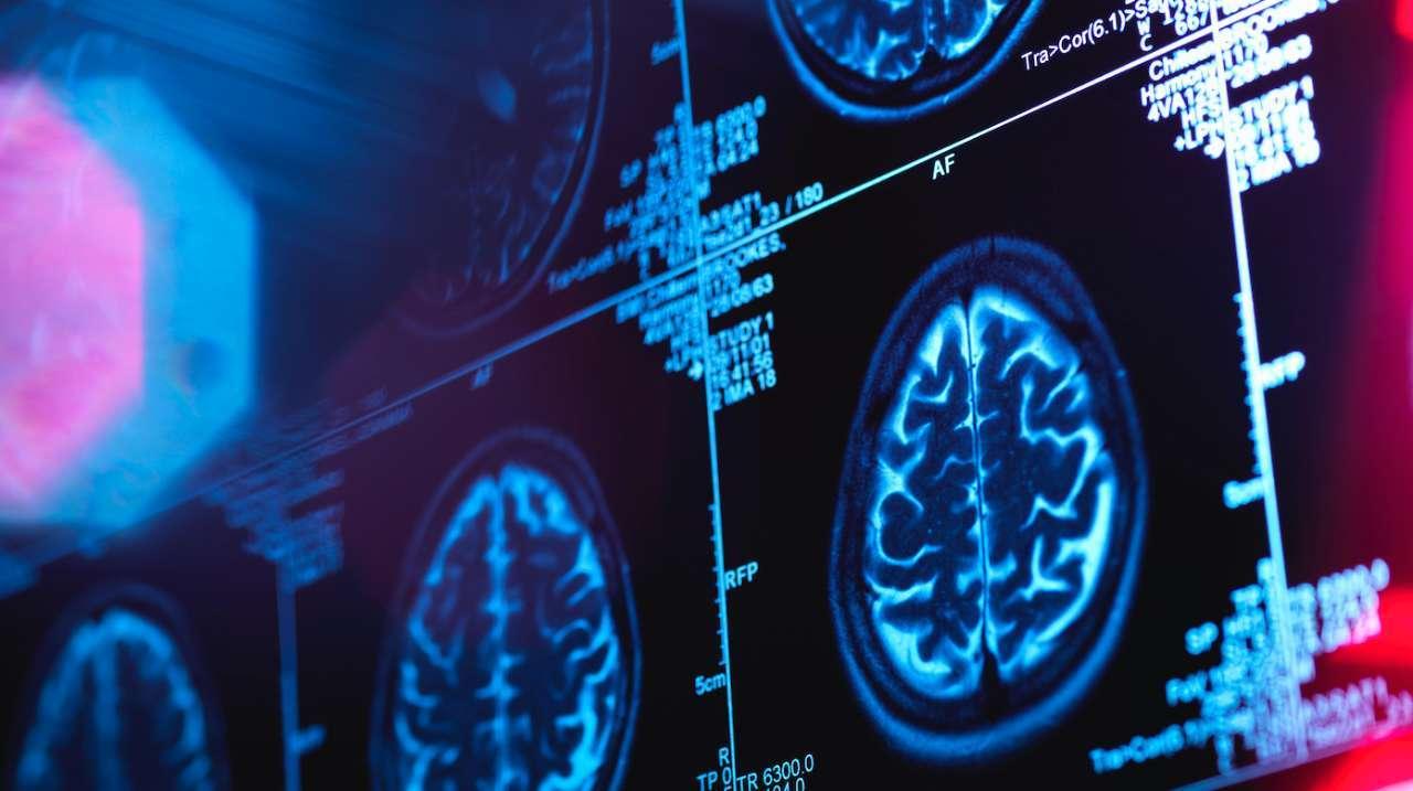 brain-scan-getty