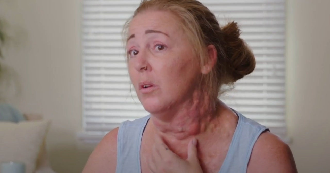 dr-pimple-popper-cysts